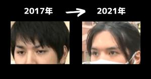 小室圭の過去と現在の眉毛の比較画像