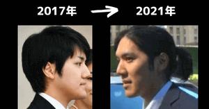 小室圭の過去・現在の顔比較画像