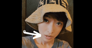 山田優の唇をケガした画像